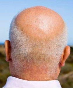 Baldness is power, says study